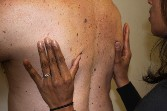 Therapy On Man's Back - Functional Manual Therapy™